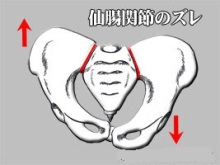 仙腸関節のずれ